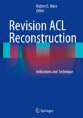 Revision ACL Reconstruction