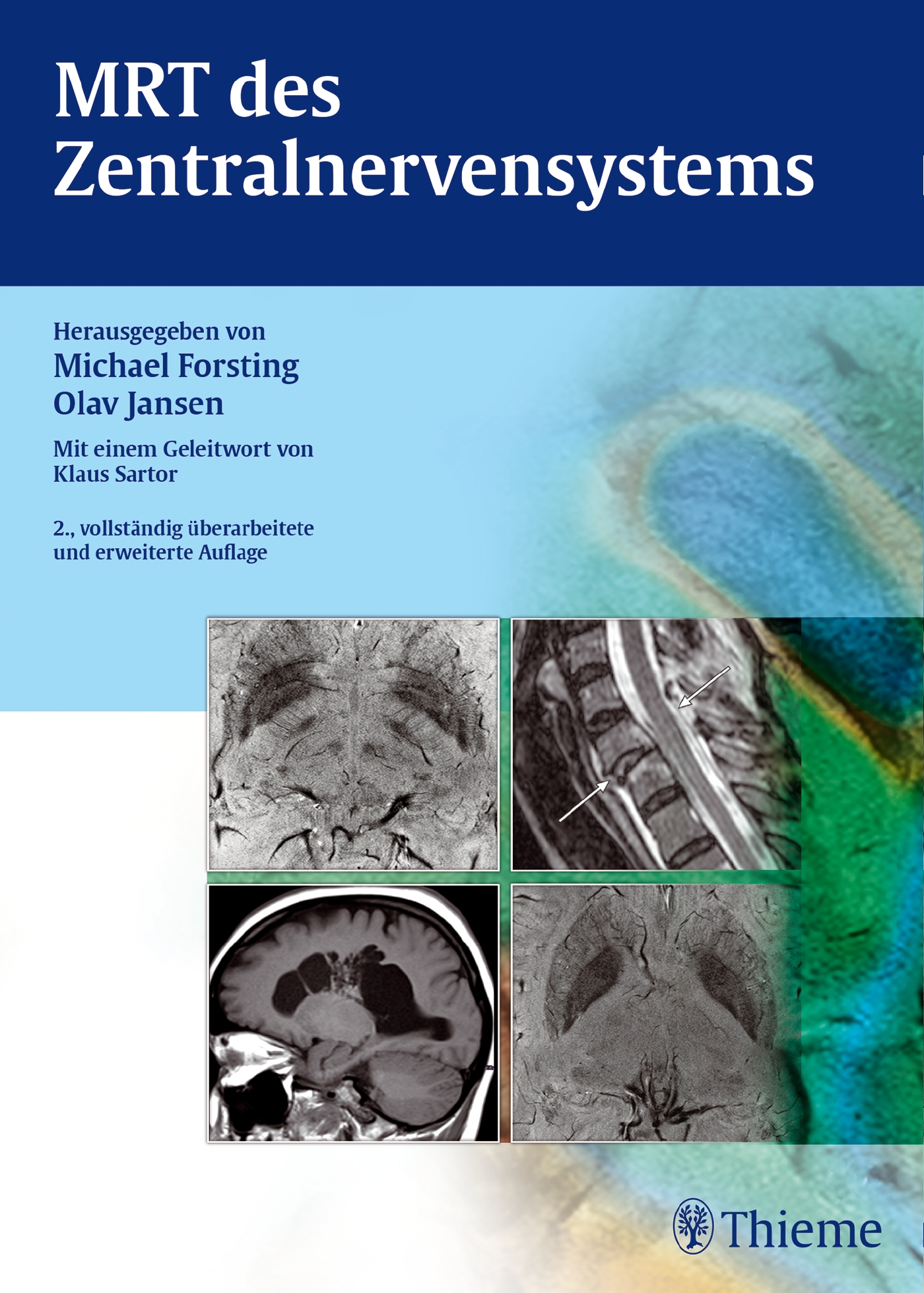 MRT-des-Zentralnervensystems-Michael-Forsting
