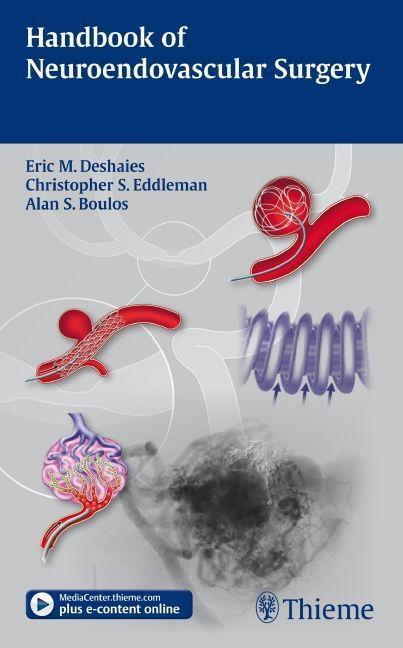 Handbook of Neuroendovascular Surgery Eric M. Deshaies