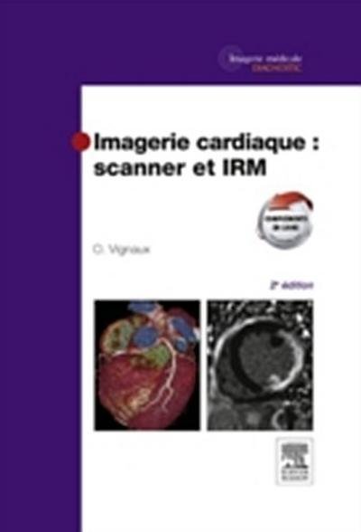 Imagerie cardiaque : scanner et IRM