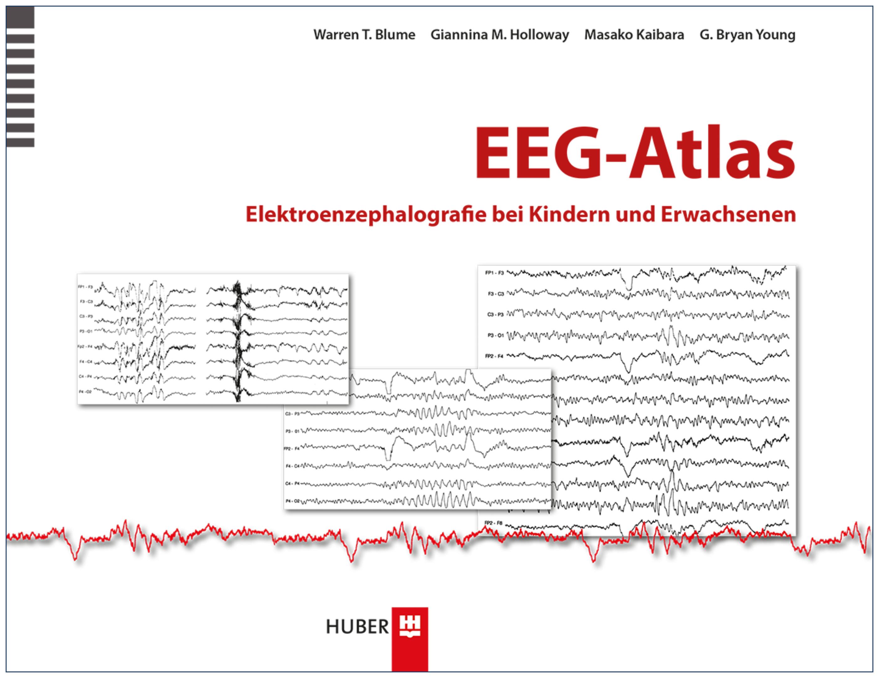 EEG-Atlas Warren T. Blume