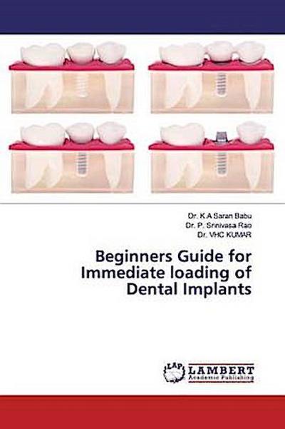 Beginners Guide for Immediate loading of Dental Implants