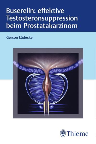 Buserelin: effektive Testosteronsuppression beim Prostatakarzinom