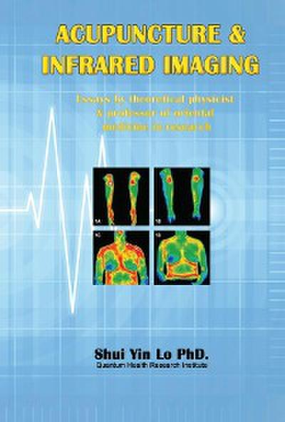 Acupuncture and Infrared Imaging