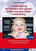 Frühförderung bei Kindern mit Lippen-Kiefer-G ...