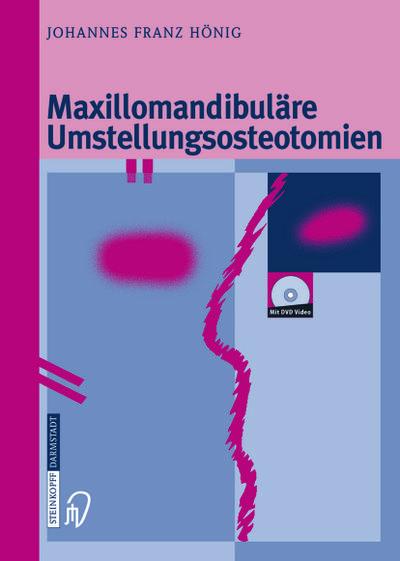 Maxillomandibuläre Umstellungsosteotomien (German Edition)