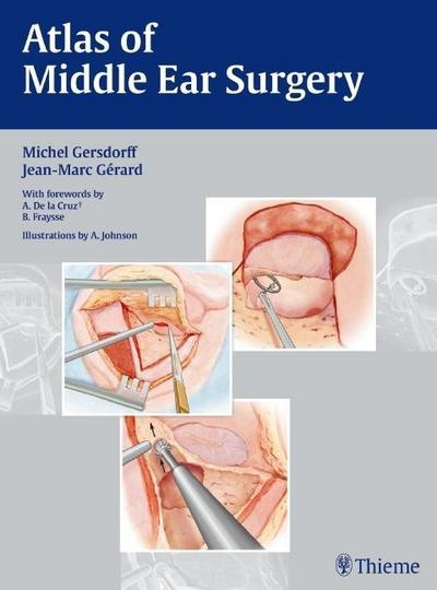 Atlas of Middle Ear Surgery