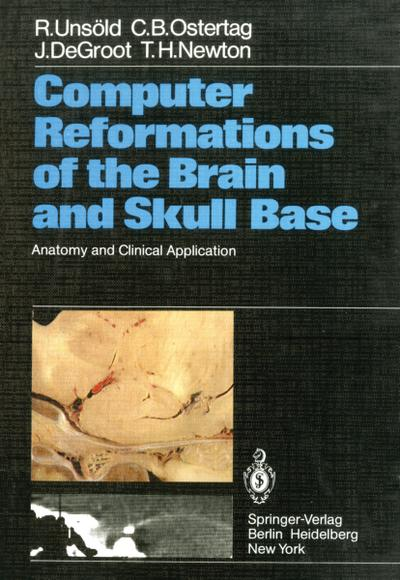 Computer Reformations of the Brain and Skull Base