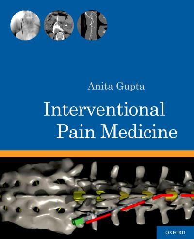 Interventional Pain Medicine