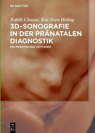 3D-Sonografie in der pränatalen Diagnostik