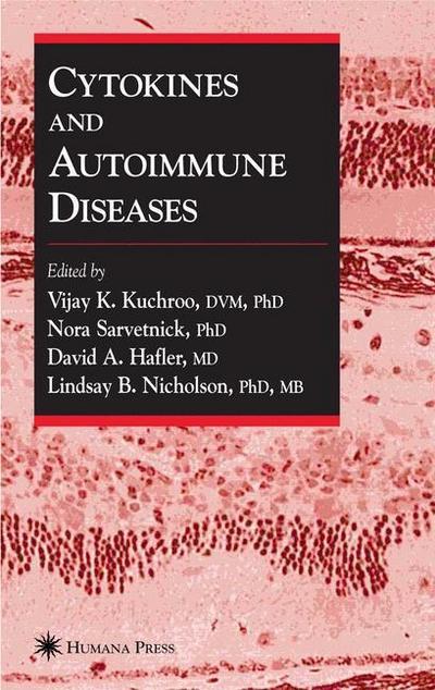 Cytokines And Autoimmune Diseases