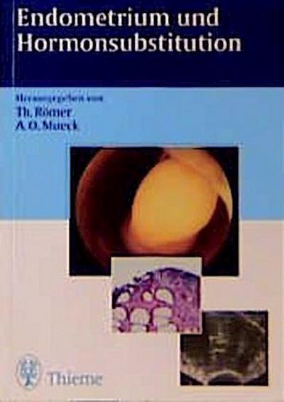 Endometrium und Hormonsubstitution