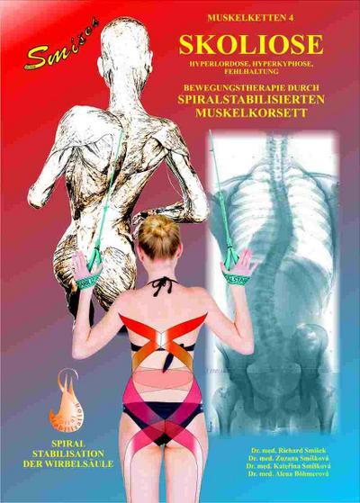 Skoliose: Bewegungstherapie durch spiralstabilisierten Muskelkorsett