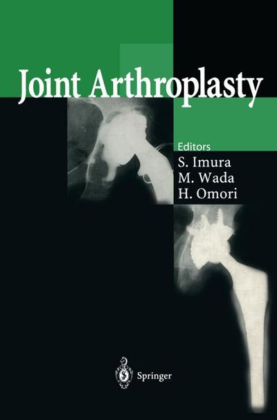 joint-arthroplasty