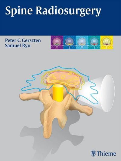Spine Radiosurgery