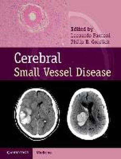 Cerebral Small Vessel Disease