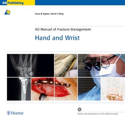 AO Manual of Fracture Management Hand and Wrist, with CD-ROM