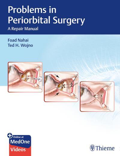 Problems in Periorbital Surgery