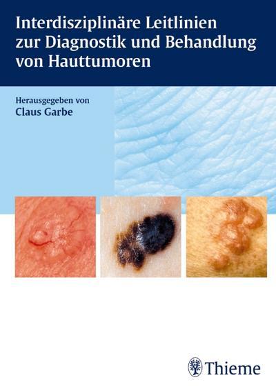 Interdisziplinäre Leitlinien zur Diagnostik und Behandlung von Hauttumoren