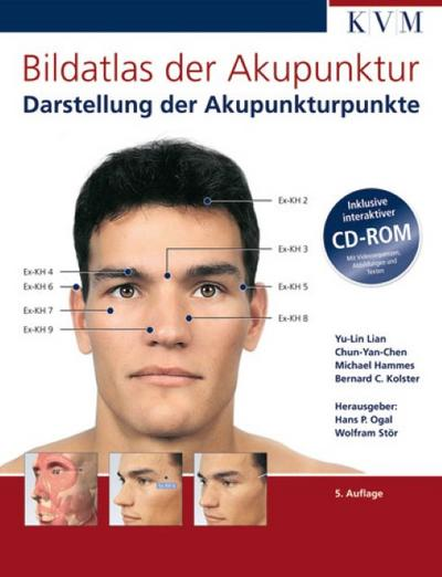 Bildatlas der Akupunktur: Darstellung der Akupunkturpunkte (inkl. CD-ROM)