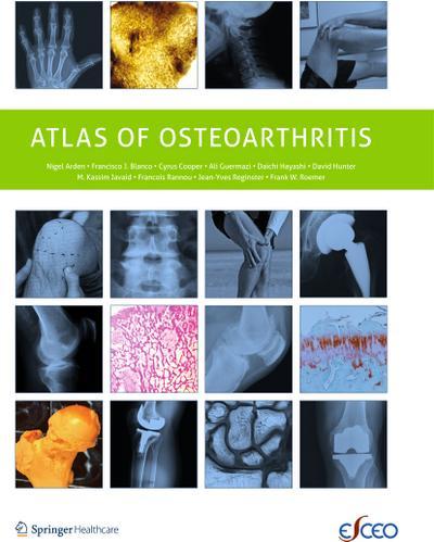 Atlas of Osteoarthritis