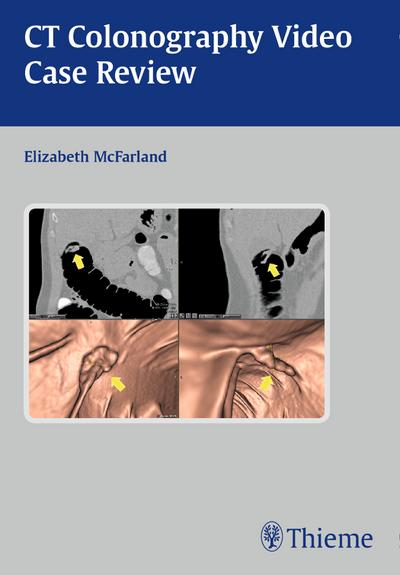 Clinical Case Review of CT Colonography, CD-ROM