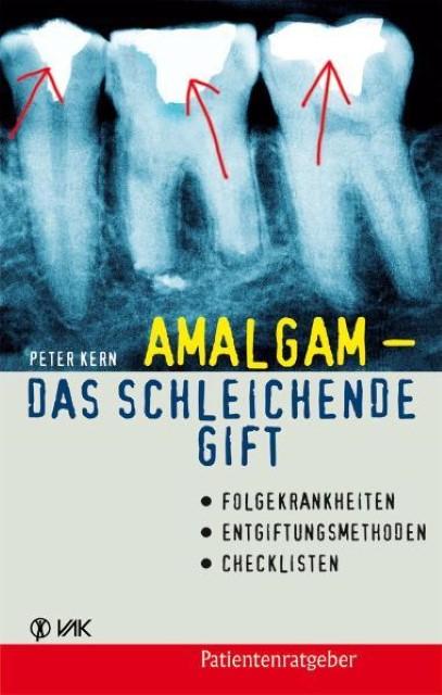 Amalgam - das schleichende Gift Peter Kern