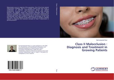 Class II Malocclusion : Diagnosis and Treatment in Growing Patients