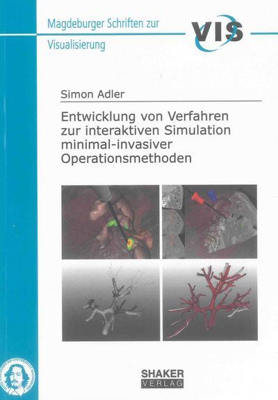 Entwicklung von Verfahren zur interaktiven Simulation minimal-invasiver Operationsmethoden