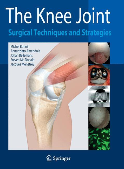 The Knee Joint Michel Bonnin