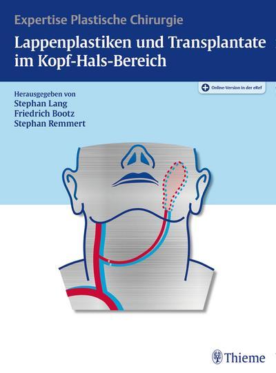Lappenplastiken und Transplantate im Kopf-Hals-Bereich