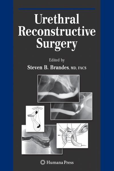 Urethral Reconstructive Surgery