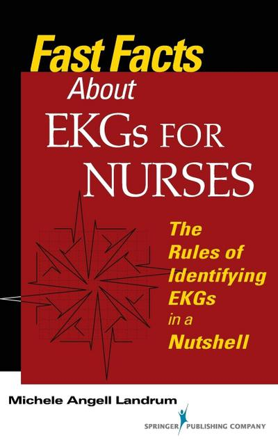 Fast Facts about EKGs for Nurses: The Rules of Identifying EKGs in a Nutshell