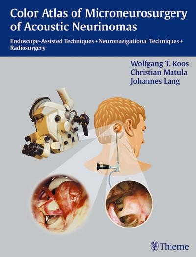 Color Atlas of Microneurosurgery of Acoustic Neurinomas