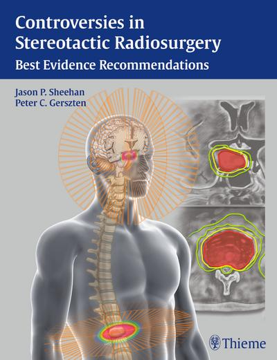 Controversies in Stereotactic  Radiosurgery