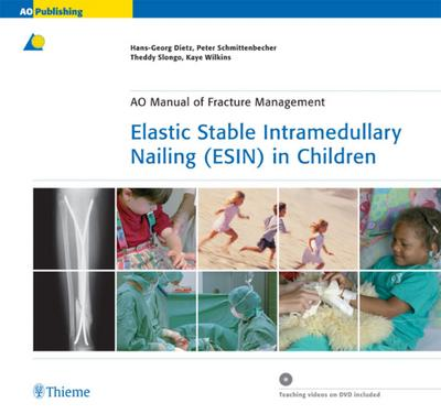 Elastic Stable Intramedullary Nailing (ESIN) in Children mit DVD