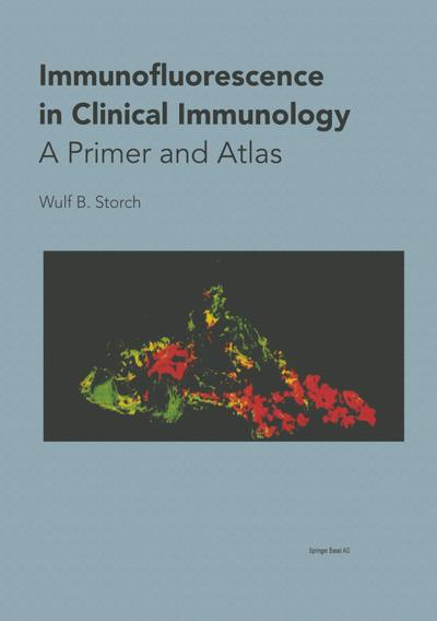 Immunofluorescence in Clinical Immunology