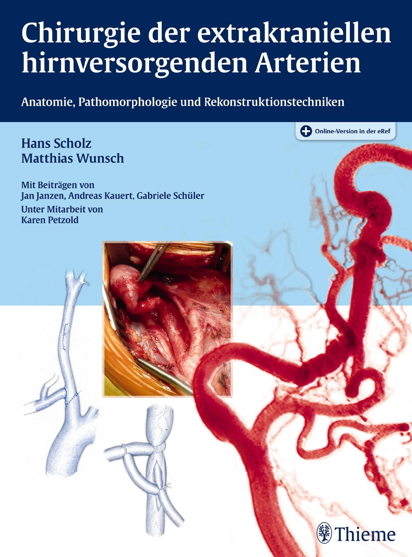 Chirurgie der extrakraniellen hirnversorgenden Arterien von Matthias ...