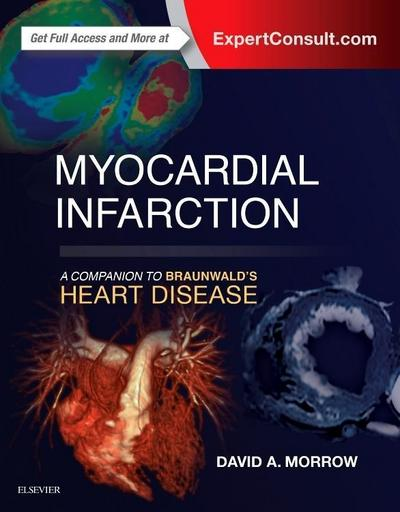Myocardial Infarction: A Companion to Braunwald's Heart Disease