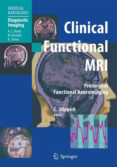 Clinical Functional MRI