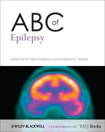 ABC of Epilepsy