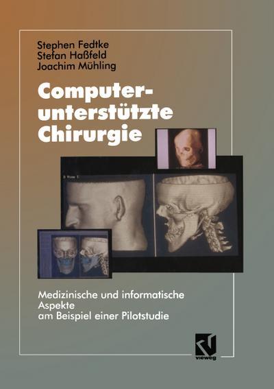 Computerunterstützte Chirurgie