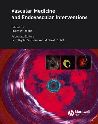 Vascular Medicine and Endovascular Interventions