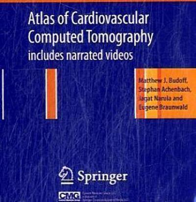 Atlas of Cardiovascular Computed Tomography: Includes Narrated Videos