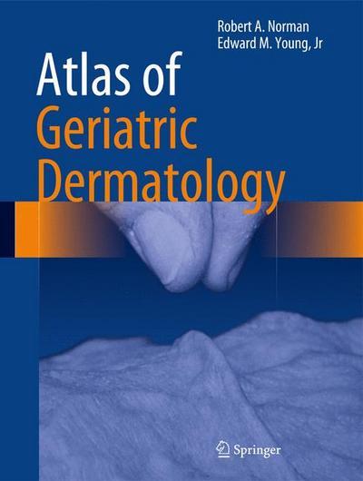 Atlas of Geriatric Dermatology