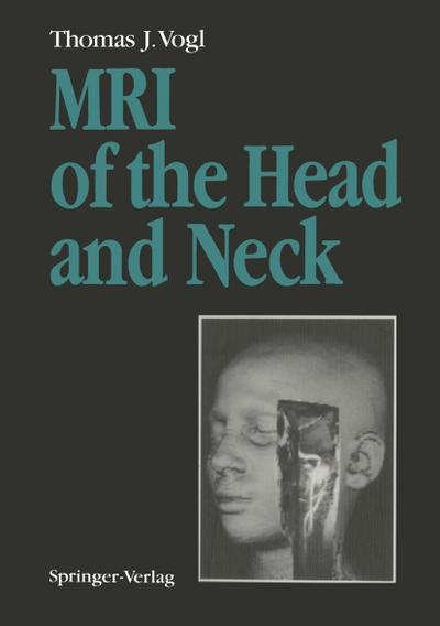 MRI of the Head and Neck