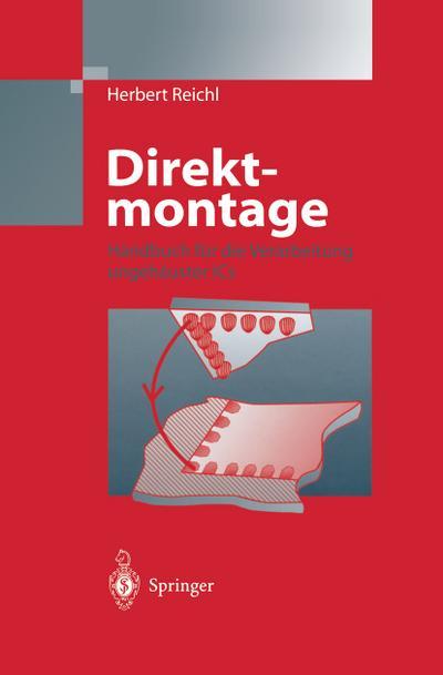 Direktmontage