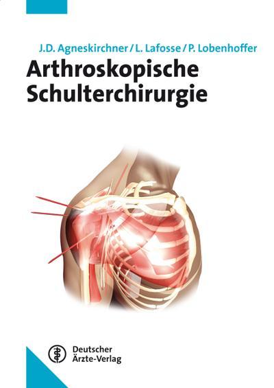 Arthroskopische Schulterchirurgie
