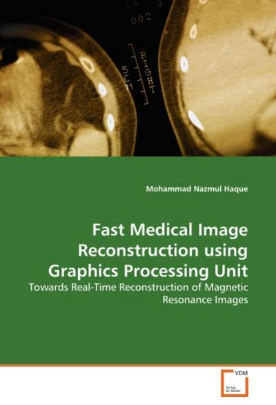 Fast Medical Image Reconstruction using Graphics Processing Unit