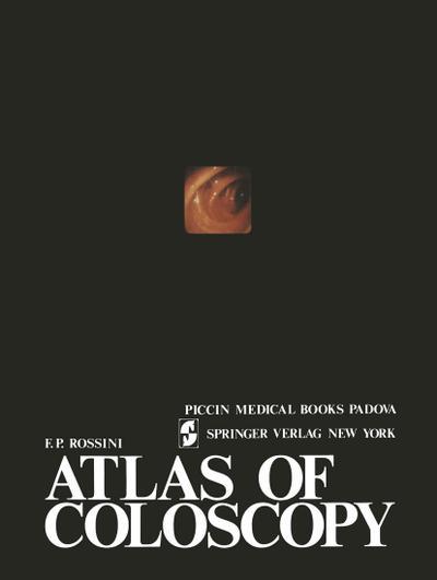 Atlas of coloscopy